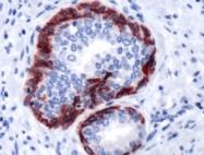 AP09587PU-S - Cytokeratin 6