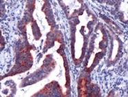 AP09579PU-N - Lipocalin-2