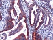 AP09579PU-M - Lipocalin-2