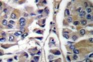 AP06202PU-N - Cytokeratin 20