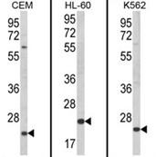 AP18088PU-N - KLRC2 / CD159c