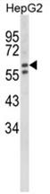 AP18045PU-N - Beta-hexosaminidase alpha / HEXA