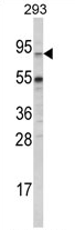 AP17071PU-N - ABCG1
