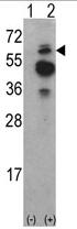 AP17080PU-N - TNK2 / ACK1