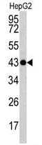 AP17084PU-N - Actin gamma / ACTG