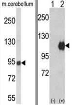 AP18009PU-N - Autotaxin / ENPP2