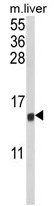 AP17929PU-N - MIP1 alpha / CCL3