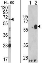 AP17890PU-N - Arylsulfatase B