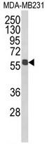 AP17880PU-N - ALDH3B1 / ALDH7
