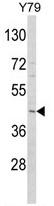 AP17871PU-N - Adiponectin Receptor 1