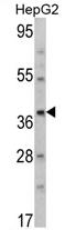 AP17103PU-N - Aminomethyltransferase