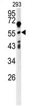 AP17104PU-N - ANGPTL2