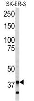 AP17111PU-N - Annexin A5 / ANXA5