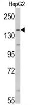 AP17115PU-N - Aldehyde oxidase