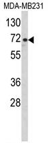 AP17126PU-N - ARHGAP18