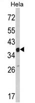 AP17131PU-N - ARPC1A / SOP2L