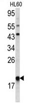 AP17132PU-N - ARPC3 / ARC21