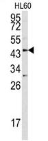 AP17138PU-N - Asporin