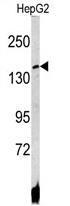 AP17142PU-N - ATP7B