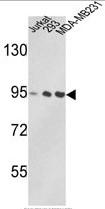 AP17823PU-N - TER ATPase / VCP