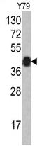 AP17144PU-N - AZGP1