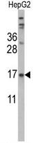AP17811PU-N - Transthyretin / Prealbumin