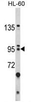 AP17151PU-N - BICC1