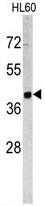 AP17808PU-N - TACSTD2