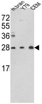 AP17804PU-N - Triosephosphate isomerase (TPI1)