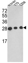 AP17803PU-N - Triosephosphate isomerase (TPI1)