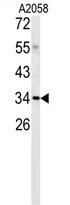 AP17159PU-N - C1QTNF1