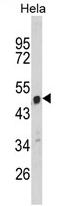 AP17161PU-N - C9orf156 / NAP1