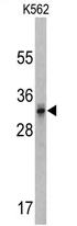 AP17163PU-N - CACNG5