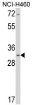 AP17167PU-N - Calponin-1
