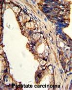 AP17785PU-N - Transglutaminase-4 (TGM4)