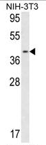 AP17170PU-N - Calponin-3