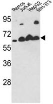 AP17172PU-N - Calreticulin