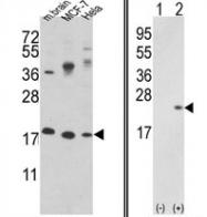 AP17209PU-N - Cofilin-1