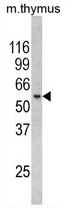 AP17212PU-N - RCBTB2 / CHC1L