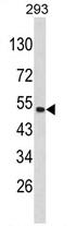 AP17214PU-N - PLEKHO1 / CKIP1