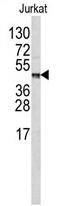 AP17235PU-N - Carboxypeptidase B2