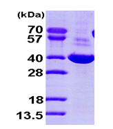 AR09395PU-L - AKR1C1 / DHH1