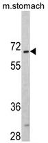 AP17243PU-N - CREB3L1 / OASIS