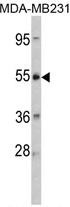 AP17244PU-N - CRHR2