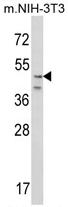 AP17245PU-N - CRHR2