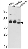 AP17266PU-N - Cytokeratin 18