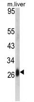 AP17271PU-N - CD302 / DCL1