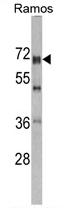 AP17277PU-N - DDX5
