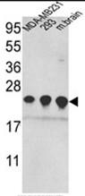 AP17662PU-N - Peroxiredoxin-2 / PRDX2