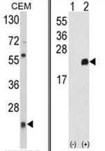 AP17660PU-N - Peroxiredoxin-1 / PRDX1